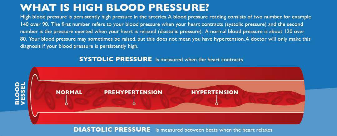 Common Comorbidities Covid-19 what is high blood pressure